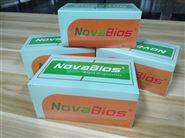黄热病毒核酸检测试剂盒(PCR-荧光探针法)