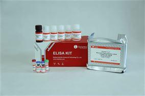 人白细胞介素21(IL-21)ELISA试剂盒
