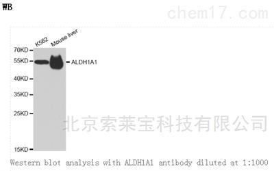 Anti-ALDH1A1 Polyclonal Antibody