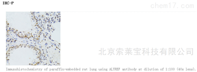 Anti-ALYREF Polyclonal Antibody