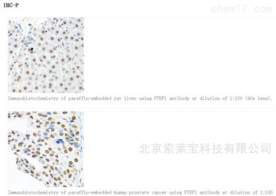 Anti-PTBP1 Polyclonal Antibody