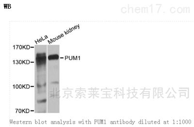 Anti-PUM1 Polyclonal Antibody