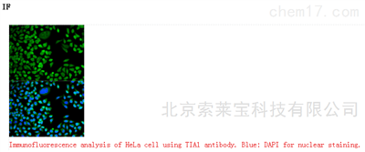 Anti-TIA1 Polyclonal Antibody