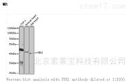 K000451PAnti-YBX1 Polyclonal Antibody
