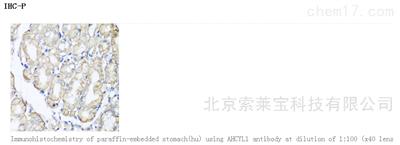 Anti-AHCYL1 Polyclonal Antibody