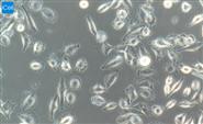 人神經上皮瘤細胞/STR鑒定