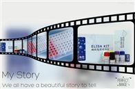 人α1微球蛋白(α1-MG)ELISA试剂盒供应商