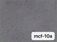 通过STR鉴定的人正常乳腺上皮细胞MCF-10A