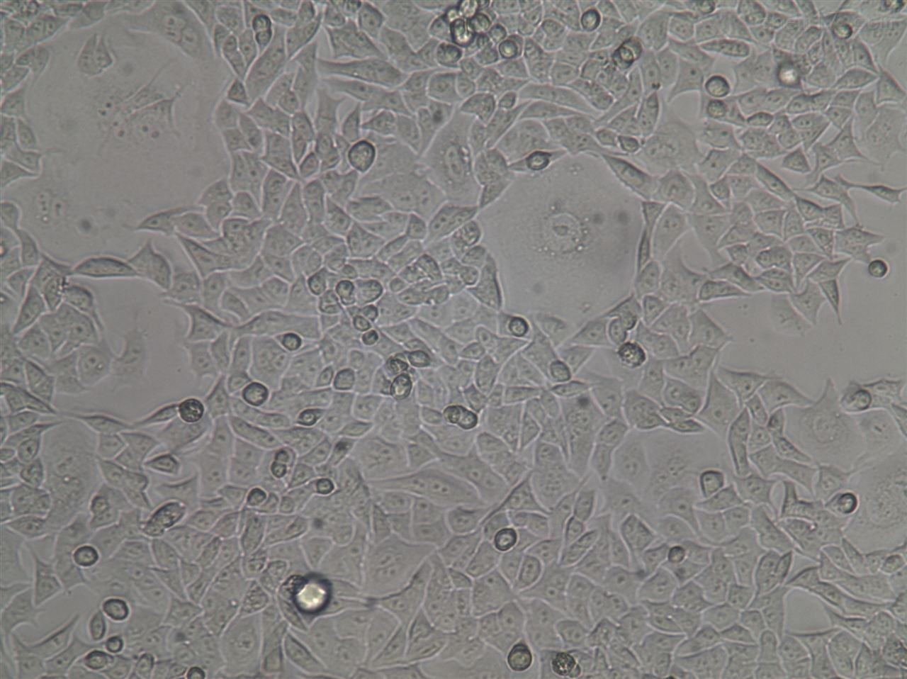 人回肠直肠腺癌耐五氟尿嘧啶细胞HCT8/5-fu