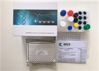 人制瘤素M受体(OSMR)Elisa试剂盒