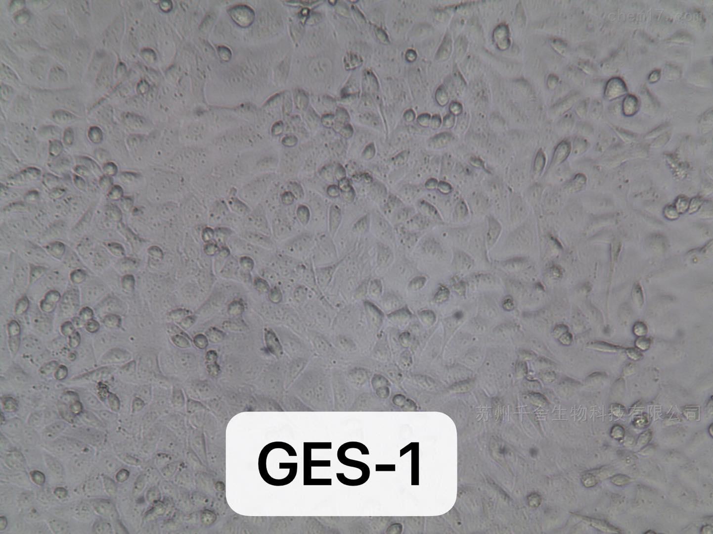 人胃正常黏膜上皮细胞GES-1 STR鉴定细胞