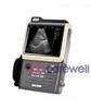 C3掌上式全数字超声诊断仪