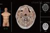 KAH-P901断层解剖与断层影像虚拟教学系统